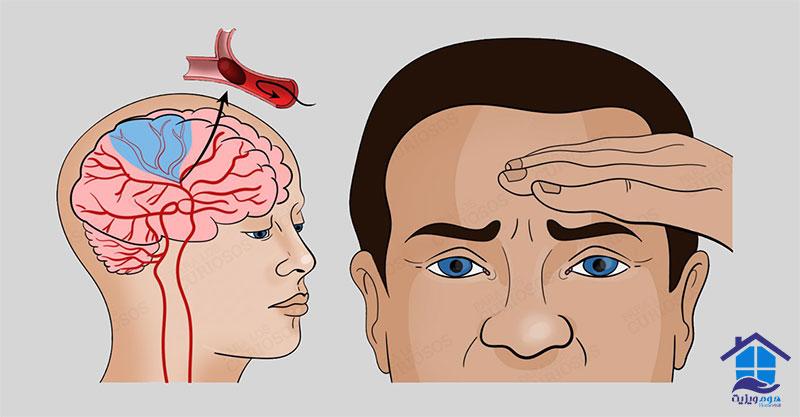 علائم سکته مغزی