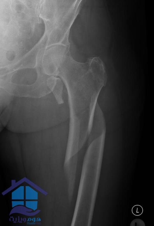 علائم شکستگی استخوان ران