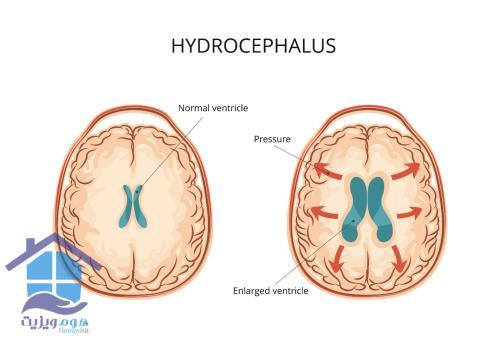 تشخیص هیدروسفالی