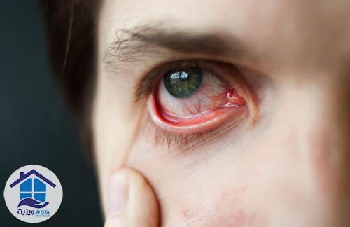 خونافتادگی در چشم