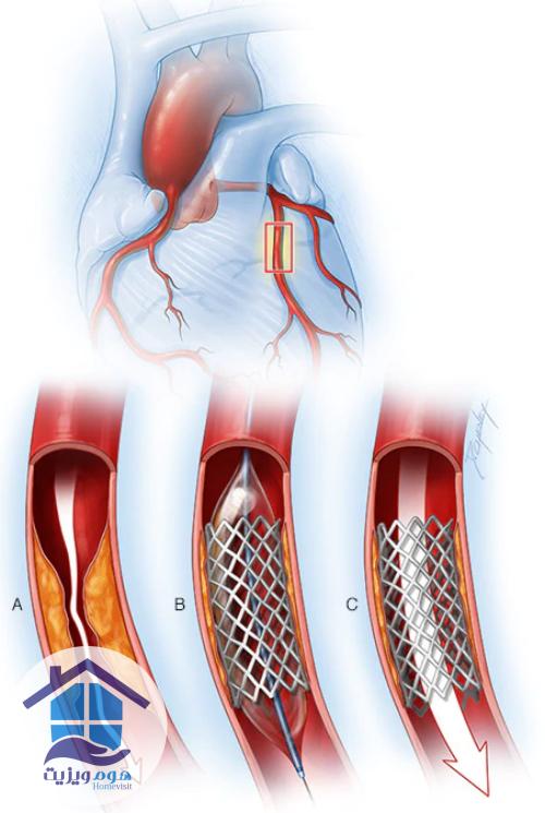 جراحی بایپس قلب