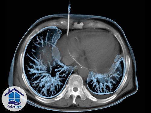 درمان در رادیولوژی